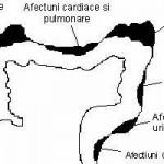Detoxifierea colonului | organe afectate