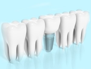 Implant dentar Dental Premier