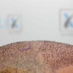 Implant de păr România versus Turcia